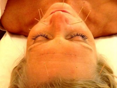 Facial/Cosmetic Acupuncture W6