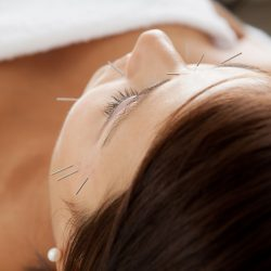 Facial Acupuncture West London W6