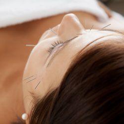 Facial Acupuncture West London W6