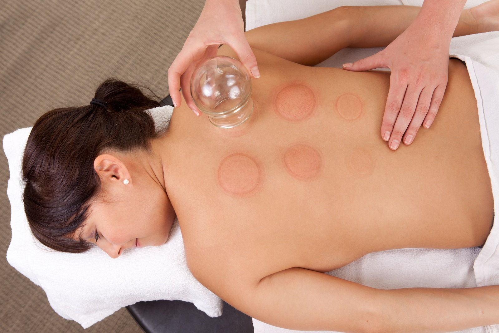 Cupping Therapy in Hammersmith